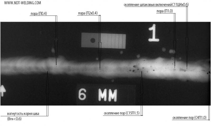рентгенограмма №1 на 25.01.16